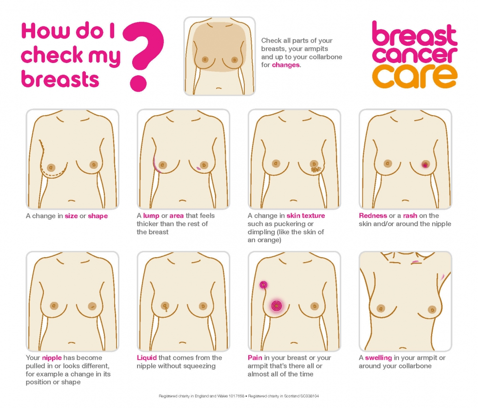 BREAST CANCER 1